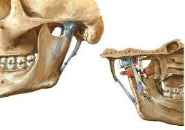 Ligamento temporomandibular (ATM)