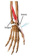abdutor longo do polegar e extensor curto do polegar - Copia